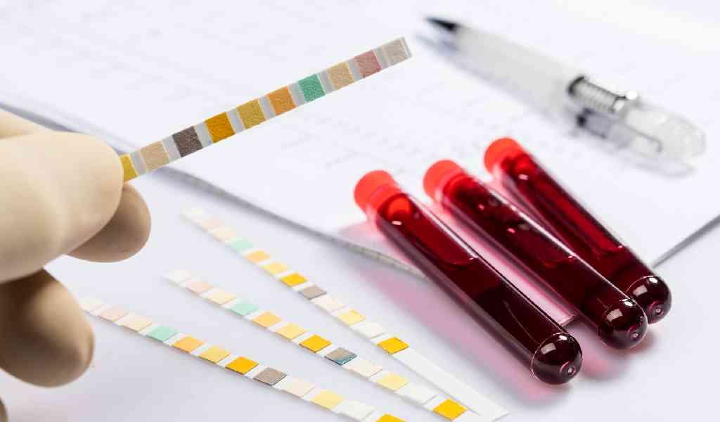 Сколько мефедрон держится в моче и крови